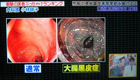 上が大腸が黒い病気の写真,大腸黒皮症